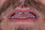Figure 10  After composite build-up by the author's general dentist, tooth display in repose was restored.