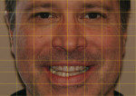 Figure 4  A yellow grid was applied to an eyebrow-to-chin preoperative face photograph.
