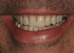 Figure 21  View of the maxillary provisionals in a natural smile.