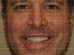 Figure 22  A yellow grid was applied to an eyebrow-to-chin photograph of the provisionals.
