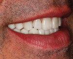 Figure 41  Right lateral view of patient's postoperative natural smile.