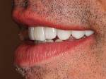 Figure 43  Patient's postoperative natural smile.
