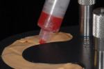 Figure 6  An injection process was used throughout this entire restorative process.