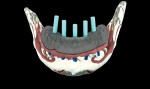 Figure 4  A fully edentulous case that is being planned using CT-guided all-on-five implants.