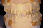 Figure 1  A conventional diagnostic mock-up from the dentist with wax added and stone removed to create ideal tooth arrangement.
