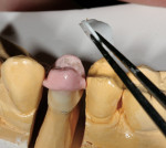 Figure 14  The flexible occlusal mold is removed from the coping.