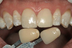 Figure 2  The case called for matching a single central incisor to a pre-fabricated restoration.