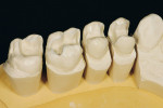 Figure 7  After the preparation and impressions were done, the models were produced in the laboratory. For the posterior teeth a sectioned model was made and aligned with a silicone key. Duplicate refractory dies of the conically prepared dies were r