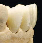 Figure 38  The remaining natural teeth should always be considered.