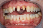 Figure 4  The dentist preparedteeth Nos. 7, 8, and 9 to receivethree IPS e.max crowns.