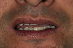 Figure 11  Clinical photograph of a patient who presented with a complaint of partial lower lip numbness, which has remained for 18 months, after the implant restoration was completed.