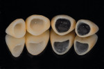 Figure  2   Spacing and the substructure will influence the final restoration esthetically, especially when trying to match different materials, ie, metal, zirconia, and all-ceramic.