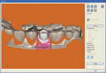 Figure  2  The 3-D view displays the abutment, gingival ridge, bite registration, and adjacent teeth.