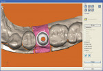 Figure  3  Occlusal view of the digital design