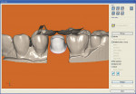 Figure  5  The abutment design with opposing teeth modeled