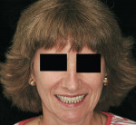Figure 9  Posttreatment smile of the same patient.