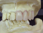 Figure  4   Denture teeth were contoured and set into each prepared socket, according to the clinician's instructions and desired outcome.