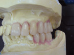Figure  5  Since the mandibular left posteriors were missing and a prosthesis was not made yet, denture teeth were set to create an ideal plane of occlusion.