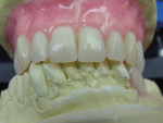 Figure  10  Denture teeth were placed and gingival wax was contoured to create an esthetic smile.