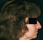 Figure 12  Pretreatment profile of a Class I patient indicates an obvious need for lip support, which is characteristic for this Class.
