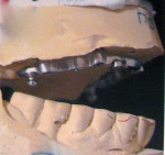 Figure  1   The difficulties in the implant bar case centered on unidentified implants and a worn implant bar cast from an unidentified alloy.