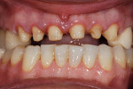 Figure  5  Prep design showed the proper reduction for an esthetic case.