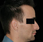Figure 18  Profile of the patient after being made edentulous. Lip support was acceptable to the patient and clinician.