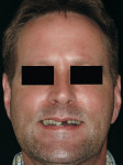 Figure 20  Pretreatment smile of a Class III patient.