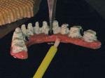 Figure 22  To begin creation ofthe denture teeth, GC GradiaOpaque was layered onto theimplant bar.