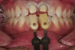 Figure 4  Acrylic provisional crowns were created from the preoperative PVS impression and the teeth were provisionalized.