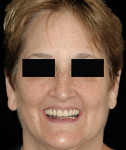 Figure 27  Posttreatment smile of the same patient illustrating the PTJ being concealed underneath the lip.
