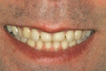 Figure 2  Preoperative smile view shows the asymmetricalupper lip, wear, and malposed anterior teeth.