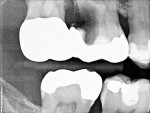 Figure 1  Initial radiograph of the large radiolucency at the site of the maxillary first molar.