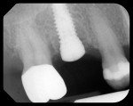 Figure 2  Radiograph of the site after implant placement and low-profile healing abutment.