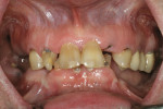 Figure 10  Patient with failed dentition.