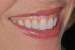Figure 3e  Left lateral smile