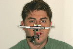 Figure 4  Face-bow on patient with facial discrepancies. The level on the bow helps align maxilla with bench top.