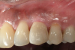 Figure 14  Postoperative check by the periodontist at 4 weeks after the provisional placement by the restorative dentist. The soft tissue health looked excellent. Further interproximal and mid-buccal soft tissue support has been recommended to help i