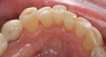 Figure 6a  Incisal wear and attrition. Mandibular anterior teeth: (A) incisal view and (B) facial view. Maxillary anterior teeth: (C) incisal view and (D) facial view.