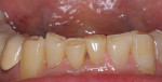 Figure 6b  Incisal wear and attrition. Mandibular anterior teeth: (A) incisal view and (B) facial view. Maxillary anterior teeth: (C) incisal view and (D) facial view.