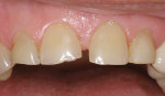 Figure 6  Incisal wear and attrition. Mandibular anterior teeth: (A) incisal view and (B) facial view. Maxillary anterior teeth: (C) incisal view and (D) facial view.