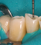Figure 7  Intradentin preparation of mandibular anterior incisal edges to a depth of 1 mm, leaving the enamel intact for bonding and restoration.
