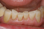 Figure 11a&ensp; Completed restorations of incisal edges: <strong>(A)</strong> mandibular restorations,(B) maxillary restorations.