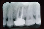 Figure 2  Periapical x-ray of tooth No. 3, with radiolucency extending into the furcation area. Teeth Nos. 2 and 4 have widened PDLs associated with occlusal trauma from nocturnal grinding.