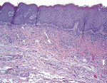 Figure 8  In moderate epithelial dysplasia, the disruption in the normal maturation pattern involves less than the lower two-thirds of the epithelium.