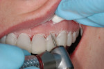 Figure 7  Intraoral curing of the provisional restorations can necessitate intraoral trimming of the excess material.