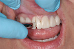 Figure 15  Provisional restorations are removed from one half of the preparations, using the patient's midline as the dividing line.