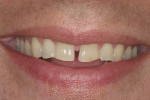 Figure 9: This view demonstrates the patient'ss natural smile prior to restoration of teeth Nos. 7 through 10.