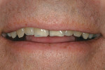 Figure 14  Pretreatment image of the patient'ss natural smile exhibits teeth in the A4 shade range.