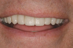 Figure 24  The natural smile of the patient during the provisional phase of dental treatment allows the patient to visualize a radical change in shade and value.